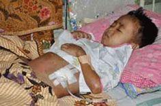 Obat Alami Gagal Ginjal untuk Anak yang Mujarab ~ Solusi Pengobatan Anak