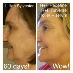 Do you have 60 days to improve your skin? Don't forget R+F offers a 60 day, empty bottle, money back guarantee! What do you have to lose? Amp Md Roller, Rodan And Fields Redefine, Acne Skin, Anti Aging Skin Care, Good Skin, Sensitive Skin, Serum, Empty, Money