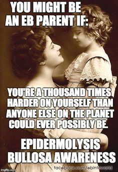 You might be an EB parent if: you're a thousand times harder on yourself than anyone else on the planet could ever possibly be. ~Epidermolysis Bullosa Awareness ebinfoworld.com