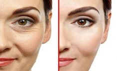 Younger Skin, Look Younger, Anti Aging Skin Care, Natural Skin Care, Natural Health, Pimples On Face, Skin Care Cream, Eye Cream, Loose Skin