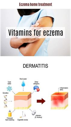 Best Ointment For Eczema. Itchy skin and eczema medication. On the list of various chronic skin disorders, eczema is among the most frequent. Physical Stress, Emotional Stress, Home Treatment, Eczema Causes, Contact Dermatitis, Vitamins For Skin, Behavioral Therapy