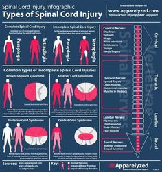 Types of Spinal Cord Injuries - PT Physical Therapy Occupational Therapist, Physical Therapist, Physical Therapy Student, Nursing Tips, Ob Nursing, Medical Information, Nursing Students, Nursing Schools, Medical Students