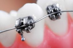 The wire technology orthodontists use today is pretty impressive! Some wires are actually activated by your own body heat, which means that every time you drink something cold, they are gradually activated afterwards.