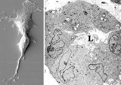 microscópio eletronico celulas - Pesquisa Google