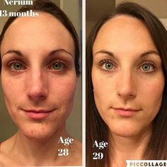 Do you look older today than you did 1 year ago? If so you need to try Nerium's day and night cream! Find out more at Krysti09.nerium.com