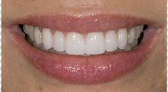 """Cosmetic Dentistry : """"Dear Dr. Landers, I am ecstatic with the results of the cosmetic dental procedures that you so artistically and deftly applied. My confidence when I speak and smile is now through the roof! As I am approaching my fifties, I now look in the mirror and see that my teeth are even more beautiful than when I was in my twenties. My smile now is youthful and vibrant! Because of your aesthetic eye combined with your advanced knowledge in your field, you have made my cosmetic…"""