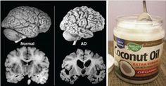 Uma esperança para o mal de Alzheimer.Nos Estados Unidos, a dra. Mary Newport está fazendo uma investigação sobre o uso de óleo de coco contra a doença de Alzheimer.