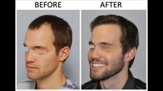 Why #BeardHairTransplant? Men are now seeking versatility in their facial hair. The ability to grow a full and dense beard to desiring designer stubble allows them to change their look and presence whenever they like. FUE Beard Transplants method used to increase density and fullness to their beards. If you have sparse facial hair, patchiness or any facial scars, a beard transplant may be the only permanent solution for you.
