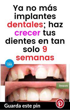 Ya no más implantes dentales; haz crecer tus dientes en tan solo 9 semanas #dentales #crecer #dientes Amazing Shopping, Tan Solo, Xmas Cards, Health Tips, Teeth, Health Fitness, Therapy, Advice, Learning