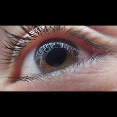 For Psoriasis Treatment Eye Floaters Causes, Laser Eye Surgery Cost, How To Treat Eczema, Anti Aging Night Cream, Eye Sight Improvement, Cellulite Remedies