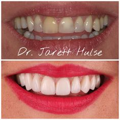 10 Porcelain veneers can totally change how you smile and give you confidence.lipstick helps too😁👄💋💄 Porcelain Veneers, Smile Makeover, Red Lipsticks, Your Smile, Dental, Confidence, Change, Teeth, Dentist Clinic