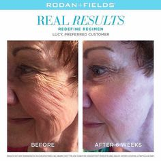 "Want to take years off of your face? Age backwards with Redefine   ""I could not be more ecstatic with my results! My skin texture has been transformed and I feel, and look 10 years younger. My friends have commented on my new ""glow"", and I have Rodan and Fields to thank."" –R+F PC, Lucy McLain. #lifechangingskincare #redefine #readyforyourtransformation"