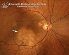 Vitreous & Retina-Serpiginous Choroiditis