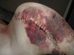Bruise & stitches study