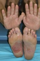 melanoma in AA ONLY occurs on the palms, soles and mucous membranes