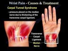 wrist pain,causes and treatment  PART I. Everything You Need To Know - Dr. Nabil Ebraheim - YouTube