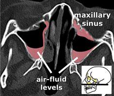 Startradiology Skull Anatomy, Brain Anatomy, Paranasal Sinuses, Maxillary Sinus, Internal Carotid Artery, Sinus Surgery, Nasal Septum, Nasal Cavity, Cerebrospinal Fluid