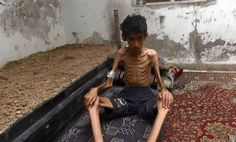 Starving children is Syria
