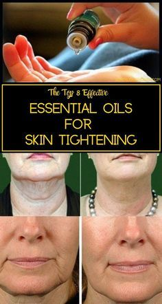 Essential Oils for Skin Tightening - Get rid of Saggy skin Here& the list of some amazing vital essential oils that prevent skin aging and promote skin tightening. Therapeutic Essential Oils, Essential Oils For Skin, Essential Oil Blends, Relleno Facial, Sagging Skin, Health And Beauty Tips, Health Tips, Healthy Beauty, Skin Treatments