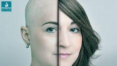 L'aspetto fisico nel paziente oncologico Blog, Blogging
