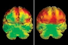 Advances in genetics  revolutionizing understanding of violent behavior: Donta Page, who robbed,raped, slit woman's throat & killed her by plunging a knife into her chest.Page was found guilty of 1st-degree murder & was a candidate for the death penalty.His brain scan, lt, shows reduced functioning of ventral prefrontal cortex(area of brain that helps regulate emotions/control impulses)compared to normal brain, rt.Donta Page avoided death penalty based in part on brain pathology.