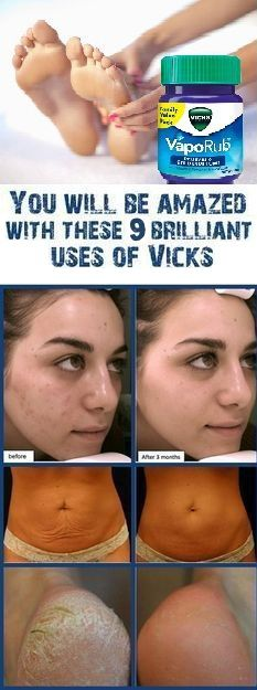 9 Surprising Uses for Vicks Vaporub We all know what is Vicks Vapor. But for those who never heard of it it is a mentholated topical cream which can be used for the chest back and throat if you have cough inhibition or for minor aches in your muscles and joints or for pains that are present for longer period of