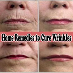 Powerful Home Remedies to Cure Wrinkles Medi Tricks Best way is to stop them before they start. Botox, proper skin care, avoidance of sun and sunscreen is a great combo. Beauty Care, Beauty Skin, Hair Beauty, Diy Beauté, Prevent Wrinkles, Lip Wrinkles, Facial Care, Tips Belleza, Beauty Recipe