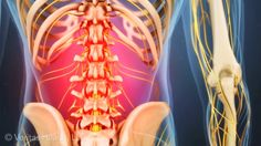 Lower back strain is acute pain caused by the muscles and/or ligaments in the lower back.