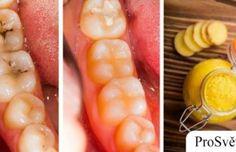 Ověřené domácí tipy, jak se zbavit zubních kazů a bolesti zubů!