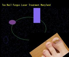 Toe nail fungus laser treatment maryland - Nail Fungus Remedy. You have nothing to lose! Visit Site Now