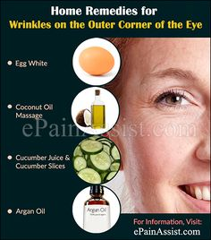 Crow's Feet: How to Get Rid of Wrinkles on the Outer Corner of the Eye?…