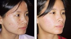 Acne before and after treatment photos and images. These are wonderful examples of Crutchfield Dermatology's ability to get rid of acne and clear it away Scar Treatment, Agua Kangen, Before And After Acne, Adult Acne Treatments, Pimple Scars, Scar Remedies, Baby Acne, Health, Beauty