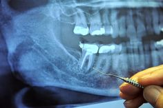 Root canals and breast cancer: The connection is clear | RiseEarth