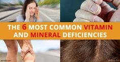 Eating a balanced whole-food diet is a foundational requirement for optimal nutrition. Find out if you are at risk in top vitamin and mineral deficiencies. http://articles.mercola.com/sites/articles/archive/2016/11/16/vitamin-mineral-deficiencies.aspx