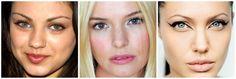 Mila Kunis has complete heterochromia. Kate Bosworth has sectoral heterochromia. Angelina Jolie has central heterochromia.