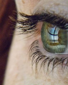 https://flic.kr/p/EzEUH2 | central_heterochromia_eye-4  Central Heterochromia