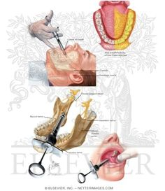 Image result for gow gates nerve block Nerve Anatomy, Dental Anatomy, Dental Art, Gym Workout Videos, Oral Surgery, Dental Hygienist, Study Materials, Things To Know, Dentistry