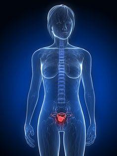 SEGUROS PRIZA te pregunta ¿QUÉ SON LOS TUMORES GINECOLÓGICOS? Los ovarios son dos y están en la pelvis, uno a cada lado del útero. Tienen la forma y tamaño de una almendra, y producen tanto óvulos como hormonas femeninas (estrógenos y progesterona) que se encargan de dar forma y rasgos femeninos al cuerpo y de regular la menstruación y el embarazo entre otras cosas. El cáncer de ovario representa el 4% de los tumores que afectan a la mujer.