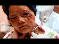 Worst Cases of Domestic Violence