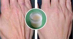 Receta casera y fácil para cuidar y rejuvenecer las manos luego del trabajo doméstico! | Healthynoticias