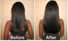 Dank dieser Heilmittel wirst du in Wochen super lange Haare haben - Rizinusöl