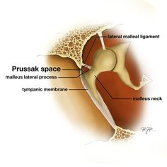 Prussak space is a subcomponent of the lateral epitympanic space and extends from the level of the scutum to the umbo. This space is best demonstrated on the oblique coronal image.   http://radiopaedia.org/articles/prussak-space