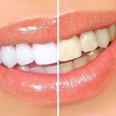 Wbybielanie zębów domowymi sposobami