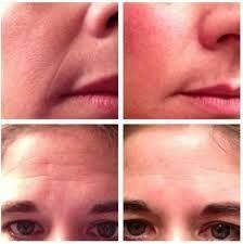 Before and after shots of the Rodan and Fields Redefine regimen.  Unbelievable.  https://sunni.myrandf.com/