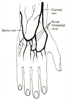Veins in the hand for IV site selection. Even if you cannot see them, they are there and you can feel