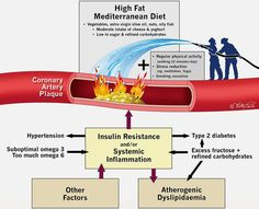 The poplar belief that saturated fats clog up arteries is just plain wrong. That's the message from three cardiologists in a just published editorial, summarizing the fairly convincing evidence: BJSM: Saturated fat does not clog the arteries: coronary heart disease is a chronic inflammatory condition, the risk of which can be effectively reduced from healthy...