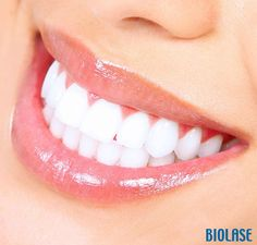Dental Tip: Gums should not bleed upon brushing. This is an indication of periodontal disease. Your dentist should do a thorough exam to evaluate the extent of the disease and prescribe an appropriate regimen. www.pecanparkdental.com