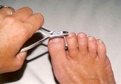 toenail-cutting-1500741