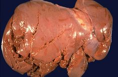 Forensic Pathology Lacerated liver due to massive abdominal blunt force injury.