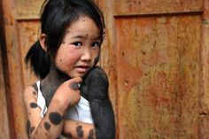 Liu Jiangli, a schoolgirl who was abandoned by her family has been adopted. The six-year-old was born with a thick coating of black fur on the left side of her face, and there are more patches across 60% of the rest of her body.While Liu's condition has not been officially diagnosed, it is thought that she may be suffering from Hypertrichosis Universalis, otherwise known as Werewolf Syndrome .